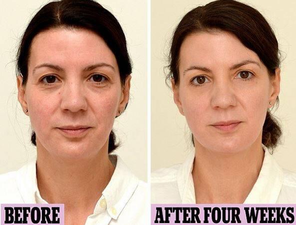 Δε θα το πιστεύετε: Αυτή η γυναίκα έπινε 3 λίτρα νερό τη μέρα για ένα μήνα και δείτε πως έγινε!