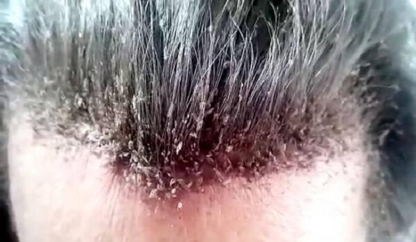 καρκινοσ στο κεφαλι