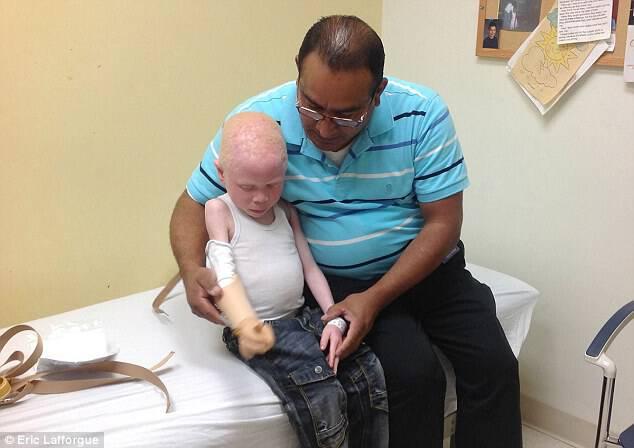 Αγόρι με αλμπινισμό που ο πατέρας του ΑΚΡΩΤΗΡΙΑΣΕ το χέρι του για… «μαγεία», πάει σχολείο για πρώτη φορά