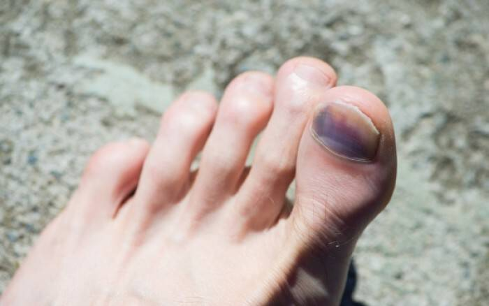 Χτυπημένο νύχι: Τι να κάνετε για να μην μαυρίσει