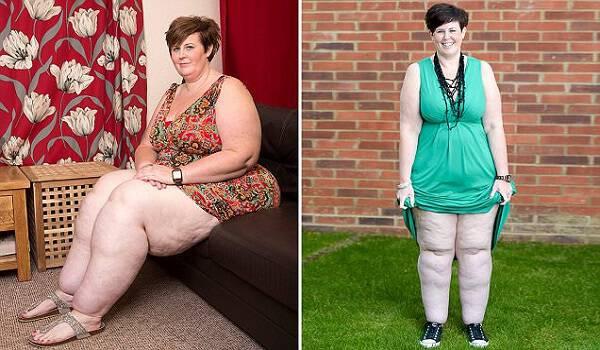 Υπέρβαρη Μητέρα κατάφερε και έχασε 50 κιλά μετά από εντατική δίαιτα. Δείτε όμως πως είναι τα πόδια της!