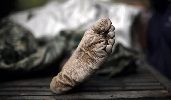 Αντέχεις να το δεις; Τι συμβαίνει στο σώμα μας μετά το θάνατο;