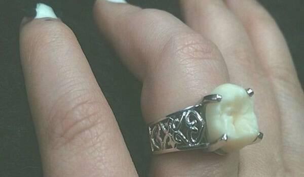 Όταν της έδωσε το δαχτυλίδι των αρραβώνων τους, Πάγωσε… Δεν μπορούσε να πιστέψει ότι έχει ένα δόντι!
