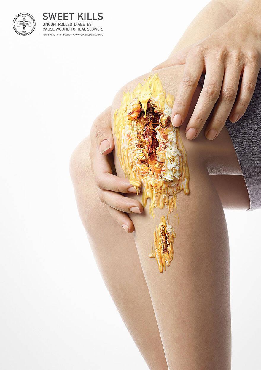 sweet kills sugar harm advertisement uncontrolled diabetes wounds 5