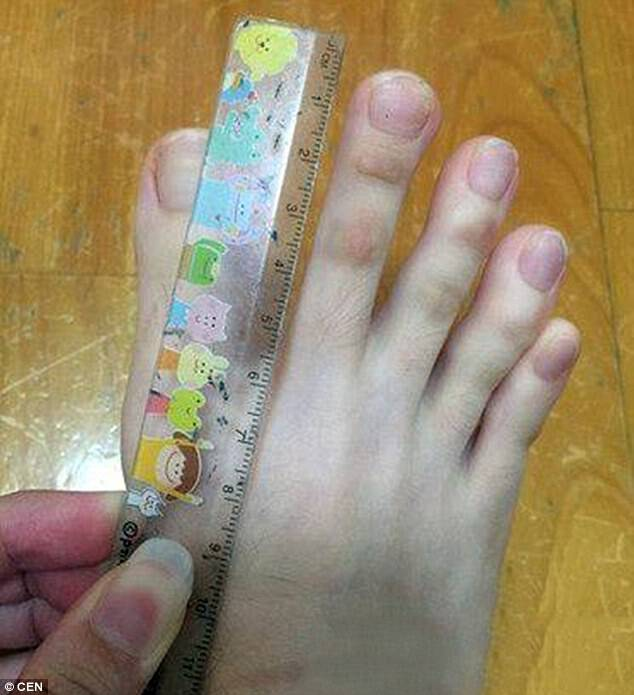 Unusually long: People are amazed by her long digits. Her second toe measures an incredible 5cm or 2 inches