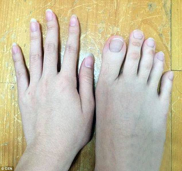 Proof that these are really toes: The woman, from Taichung, posted a picture to compare her hand and her foot