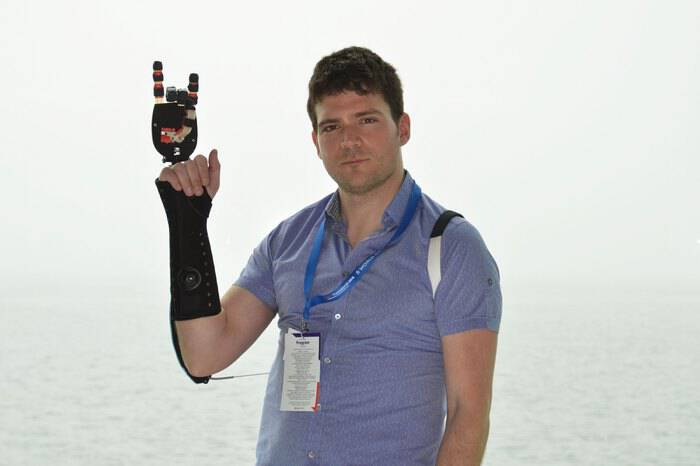 Έλληνας δημιουργεί φτηνά προσθετικά μέλη και αλλάζει τη ζωή των ατόμων με αναπηρία