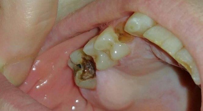 Έχετε Χαλασμένα Δόντια: Με Αυτό το Γνωστό Φάρμακο θα τα Κάνετε σαν Καινούρια!
