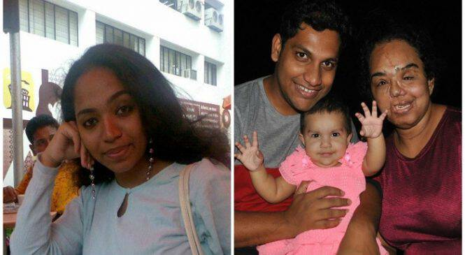 Άνδρας έκανε πρόταση γάμου στην κοπέλα του που παραμορφώθηκε σε ατύχημα κι απέδειξε ότι η αληθινή αγάπη υπάρχει