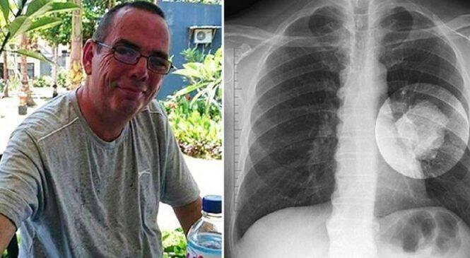 Χρόνιος καπνιστής νόμιζε ότι έπαθε καρκίνο του πνεύμονα αλλά οι γιατροί ανακάλυψαν ότι ο όγκος ήταν ένας κώνος από Playmobil