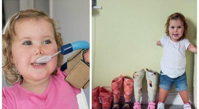Κοριτσάκι 3 των έχασε όλα του τα άκρα από μηνιγγίτιδα και τώρα ετοιμάζεται να κάνει τα πρώτα του βήματα με προσθετικά πόδια