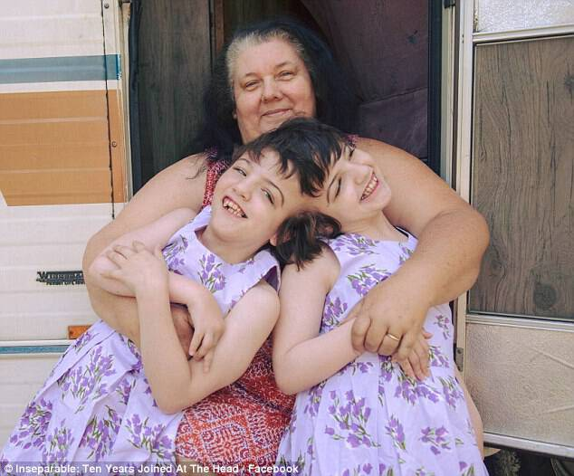 When Tatiana and Krista (pictured with their grandmother), were born, their parents, Felicia and Brendan, were warned to prepare for the worst as the children were not expected to survive the day