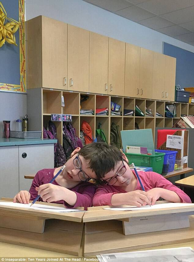 But now, the twins, who live with their family in Vernon, British Columbia, have continued to defy expectations and enjoy similar lives to their classmates. The twins are seen in class working on their assignment. They are currently in the sixth grade