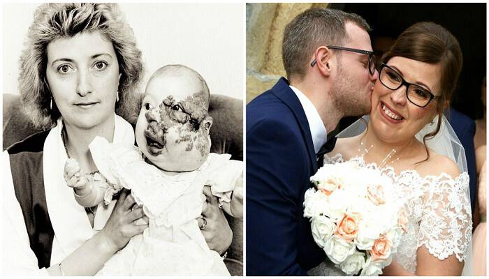 25χρονη γεννημένη με σοβαρή παραμόρφωση προσώπου μετά από χρόνια μπούλινγκ παντρεύεται τον έρωτα της ζωής της