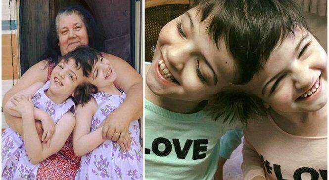 Η θαυματουργή ιστορία με τα σιαμαία κοριτσάκια που θα ζούσαν μόνο 1 μέρα και σήμερα είναι 10 χρονών