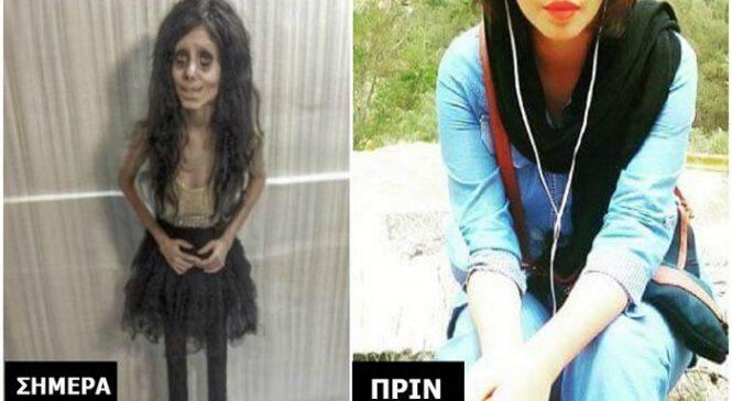 Θυμάστε την 19χρονη που έκανε 50 Πλαστικές για να μοιάσει στην Τζολί;. Δείτε ΠΩΣ ήταν Πριν και θα Σοκαριστείτε.