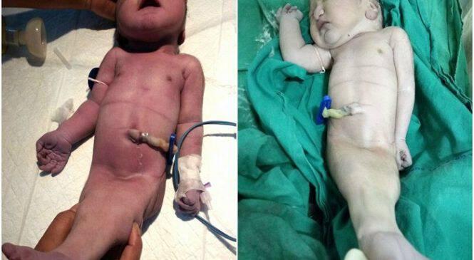 Γυναίκα γέννησε «μωρό – γοργόνα» στην Ινδία