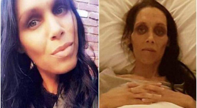 Φωτογραφίες δείχνουν πως ο καρκίνος έκλεψε τη ζωή μιας 32χρονης μητέρας όταν διαγνώστηκε με την ασθένεια σε έναν υπέρηχο εγκυμοσύνης