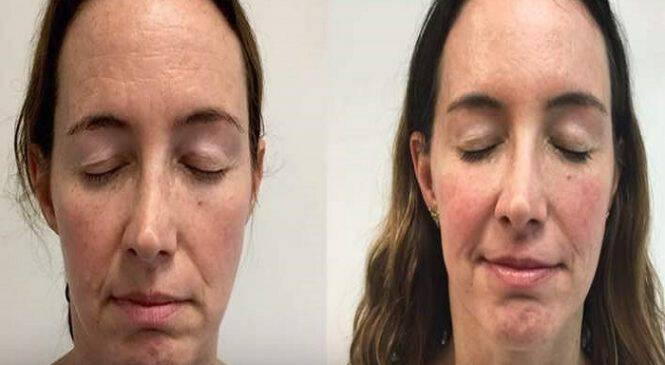 Oταν πετυχαίνει το botox -50χρονη έκανε ίσως τις πιο επιτυχημένες αισθητικές επεμβάσεις (ΒΙΝΤΕΟ)