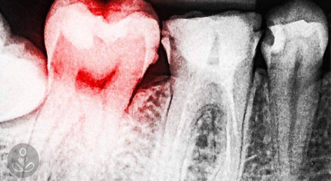 Προσοχή! Τα αποστήματα στα Δόντια είναι άκρως Επικίνδυνα. Δείτε 11 Σπιτικά Γιατροσόφια για να τα αντιμετωπίσετε!