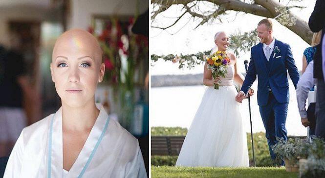 Έχασε τα Μαλλιά της εξαιτίας της Ασθένειάς της. Ο λόγος που αρνήθηκε να βάλει περούκα στον Γάμο της; ΣΥΓΚΛΟΝΙΣΤΙΚΟΣ!