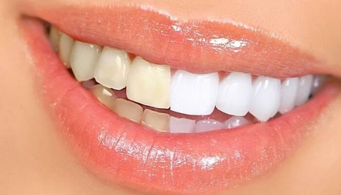 Αυτές είναι οι 3 τροφές που κιτρινίζουν τα δόντια!
