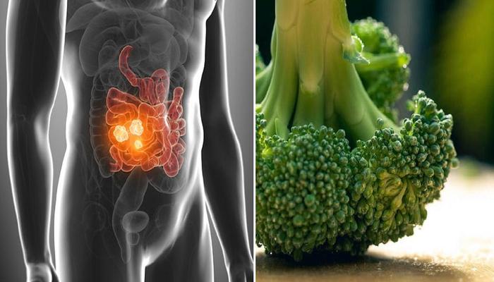Καρκίνος εντέρου: Οι επιστήμονες ανακάλυψαν την τροφή που σκοτώνει το 75% των καρκινικών όγκων