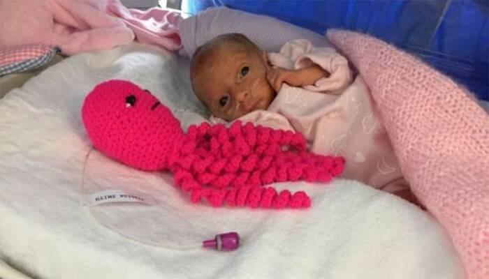 Πώς πλεκτά χταποδάκια βοηθούν να κρατηθούν στη ζωή πρόωρα μωράκια