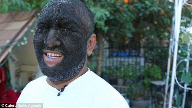 Larry Gomez, of San Bernardino, California, has been nicknamed the 'Wolf Man', because 98 per cent of his body - including his face - is coated by thick, dark hair