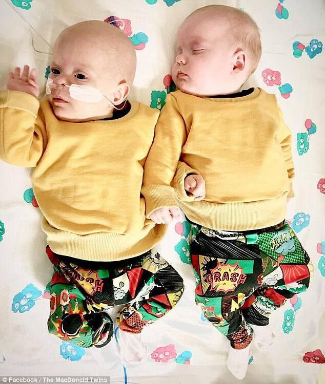 Τα θαύματα αγόρια που είναι «θαυμαστές μαχητές» είναι τώρα οκτώ μηνών και είναι ευτυχισμένοι και υγιείς