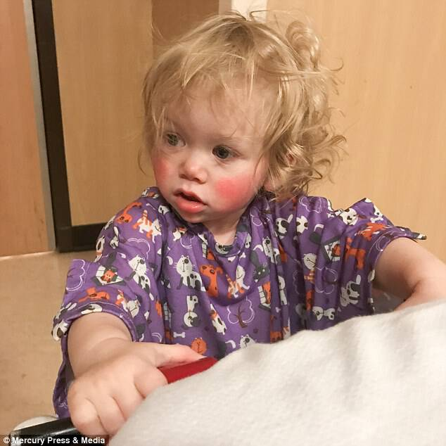 Getting overly emotional causes the youngster's cheeks to blister (pictured)