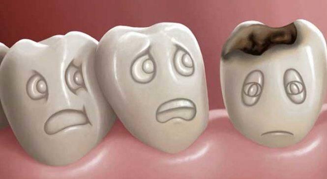 ΜΕΓΑΛΗ ΠΡΟΣΟΧΗ: Χαλασμένα δόντια; Ποιους κινδύνους κρύβουν για την υγεία