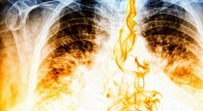 Το ηλεκτρονικό τσιγάρο συνδέεται με την πνευμονία- Τι βρήκαν οι επιστήμονες!!!