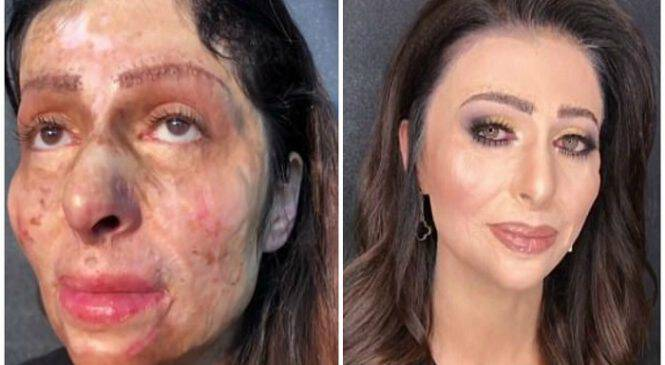 Γυναίκα που έζησε χρόνια με τρομερές ουλές στο πρόσωπο δέχεται για πρώτη φορά να της κάνουν μακιγιάζ και γίνεται αγνώριστη