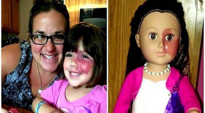 Υπέροχη Μητέρα Πρόσθεσε ένα Σημάδι στην Κούκλα της κόρης της, για να έχει ένα Παιχνίδι που να της Μοιάζει.