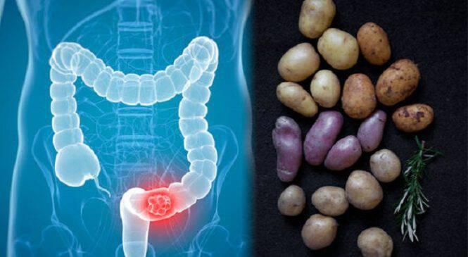 Καρκίνος του παχέος εντέρου: Πώς συνδέεται με τις… πατάτες που τρώτε