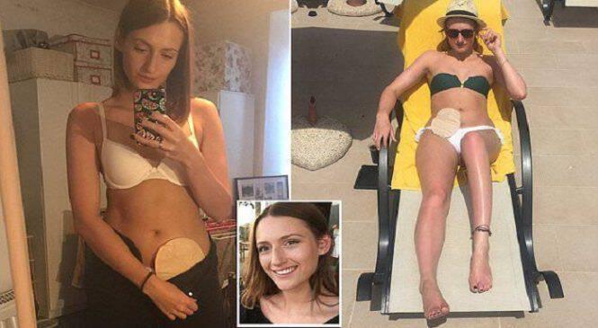 25χρονη με νόσο του Bowen ποζάρει περήφανη με το σακουλάκι της για να εμπνεύσει κι άλλους ασθενείς να μη χάσουν την αυτοπεποίθηση τους