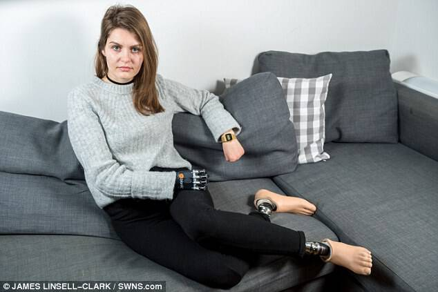 Magdalena Malec (pictured), 31, had to have both of her legs, her right arm and the fingers of her left hand amputated after contracting the killer disease in hospital
