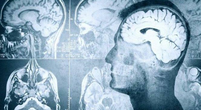 Τι συμβαίνει στον ανθρώπινο εγκέφαλο ένα λεπτό πριν το θάνατο