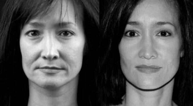 Απόλυτη Μεταμόρφωση: Κάνε Lifting Στο Πρόσωπό Σου Με Ειδικές Ασκήσεις Και Ένα Κουτάλι -ΒΙΝΤΕΟ