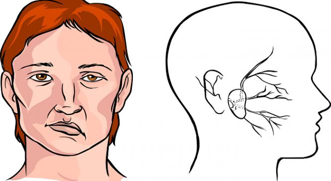 Πως να αναγνωρίσεις τα πρώτα σημάδια του εγκεφαλικού και πως να το προλάβεις