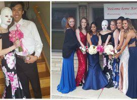 Έφηβη δεν μπορούσε να πάει στο χορό του σχολείου της επειδή είχε φρικτά εγκαύματα και οι φίλοι της έκαναν τη γιορτή στο σπίτι της