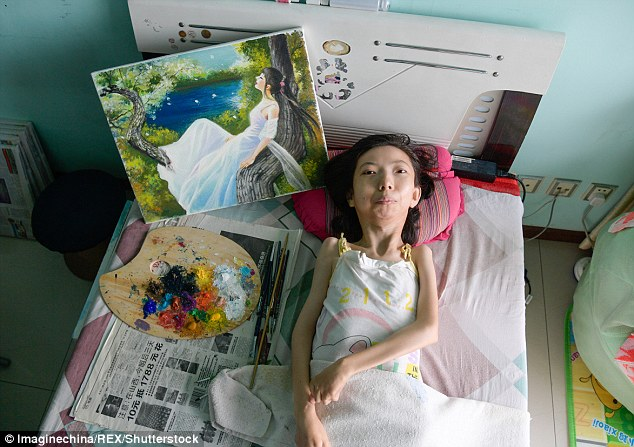 For 32 years, Zhang has been battling rheumatoid arthritis in bed - but never once did she feel sorry for herself. She indulged herself in oil painting and let her imagination run wild